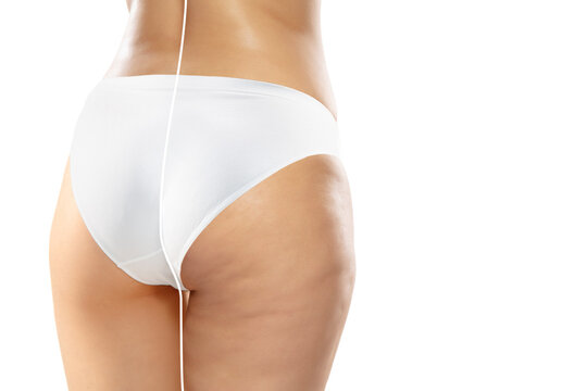Overweight woman with cellulite legs and buttocks in white underwear comparing with fit and thin body isolated on white background. Orange peel skin, liposuction, healthcare, beauty, sport, surgery.
