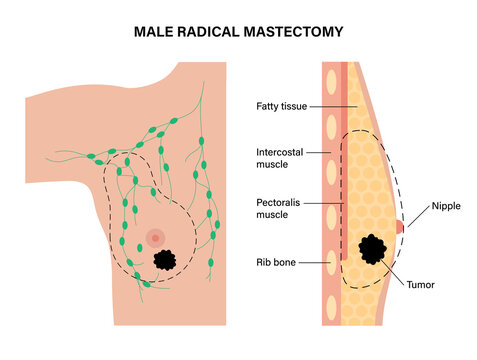 Breast disease concept