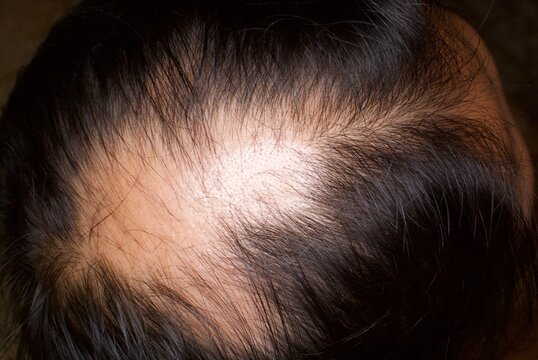 Close-up Of Man Suffering From Hair Loss