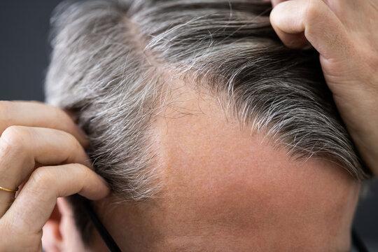 Balding Man Losing Hair
