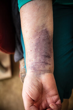 Senior woman with a bruise on the arm, hematoma on skin, healthcare