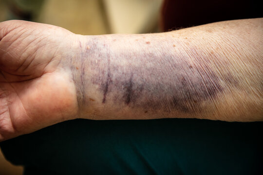 Senior woman arm with a bruise hematoma or haematome on skin