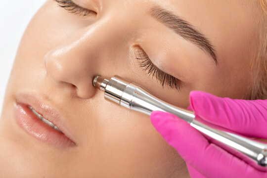 Beautiful girl with clean fresh skin.Cosmetologist makes  procedure microdermabrasion on the face against acne and blackheads on the nose. Women's cosmetology in the beauty salon.