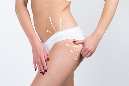 Cellulite removal scheme on body girl. White arrows markings on belly and leg young girl.