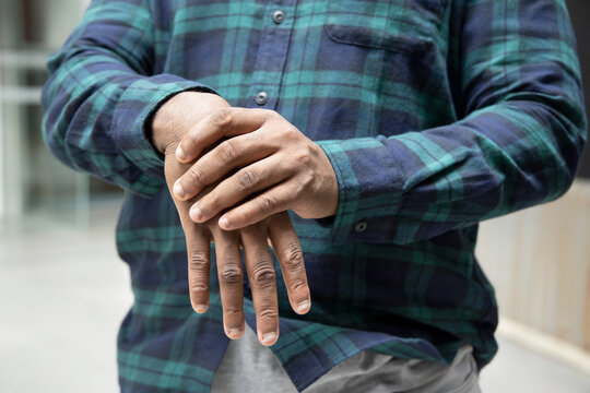 African man suffering from wrist or hand pain, sick black man with cps wrist pain, trigger finger, bone arthritis, gout symptoms, sickness, health care or pain concept