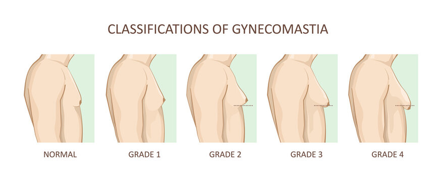 Classification of gynecomastia. Enlargement of the male breast