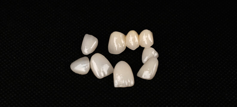 dental laminate veneers, zirconia ceramic crowns
