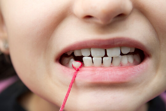 Tearing out a baby's tooth from a girl with a red string. Close-up, selective focus
