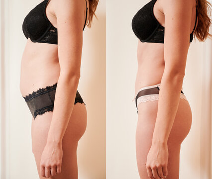 Side view of woman's body before and after weight loss, plastic surgery concept