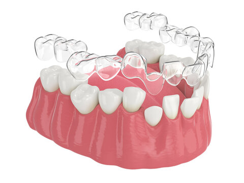 3d render of jaw with clear aligner splint