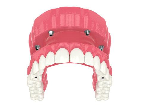 3d render of all on 4 dental implants treatment
