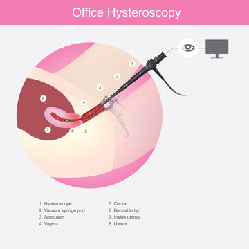 Office Hysteroscopy. Illustration showing the doctors use a micro camera (hysteroscope) insert passed a vagina into the uterus for diagnosis symptom..