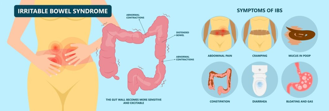IBS large small pain gas treat cancer mucus stool colon Rectal tract virus bacterial overgrowth IBD colitis Crohn's sibo diarrhoea belly celiac gastritis blood