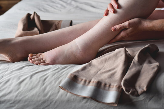 Woman putting on compression stockings on swollen feet affected by lymphedema condition