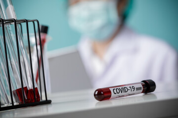 Testing patients blood samples for Coronavirus Outbreak (COVID-19) in the laboratory, New...