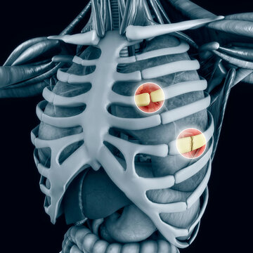Anatomy and the human body. Costochondral separation, separated rib. Broken, fractured ribs. Bones in the rib cage breaks or cracks. The chest hurt more with deep breath. Perforated lung. 3d render