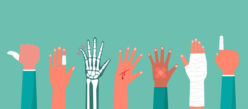Concept of the human hand trauma injury with X-ray of broken bone, cutting wound red blood on palm, the bandage on finger, arm pain, vector flat illustration