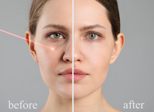 Face of young woman before and after treatment by laser on grey background