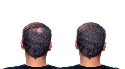 Hair Loss concept. Man Back with bald Head, Hair Loss - Image