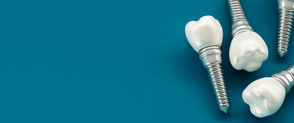 Fototapeta Close-up Of Dental Implant Against Blue Background obraz