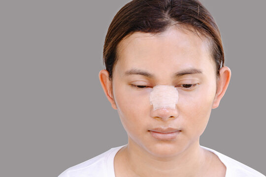 portrait of beautiful young female face with bandage on her nose - beauty treatment plastic surgery isolated on gray background