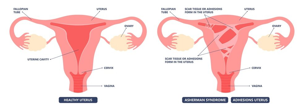 Asherman's uterus scar tissue cervix wall pelvic pain trauma and genital tube cramps abnormal injury deposit tract cancer HSG no period ovary PCOS polyp fibroid menstruation cycle loss inflammation