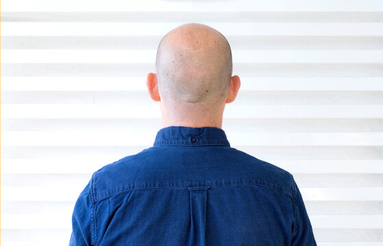 Person without hair on his back with blue shirt and white background
