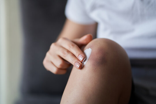 Close up of a person rubbing cream for healing injured knee joint. Bruise on the knee. Leg pain
