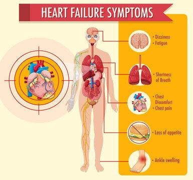 Heart failure symptoms information infographic