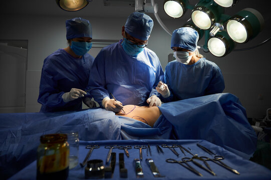 Group of doctors in sterile gloves and protective face masks doing cosmetic surgery in operating room at hospital. Patient with marks on belly lying on operating table. Concept of plastic surgery.