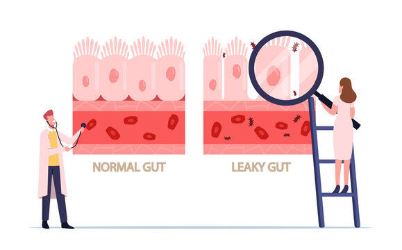 Comparison of Normal and Sick Gastrointestinal Tract Tissue, Leaky Gut Syndrome. Healthy and Inflamed Intestinal Cells