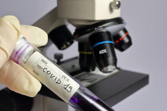 Provetta con all'interno una soluzione da analizzare al microscopio.