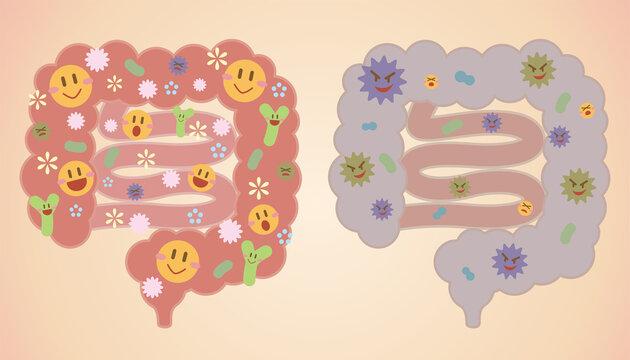 【腸内フローラ】善玉菌と悪玉菌