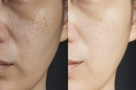 two pictures compare effect Before and After treatment. skin with problems of freckles , pore , dull skin and wrinkles before and after treatment to solve skin problem for better skin result