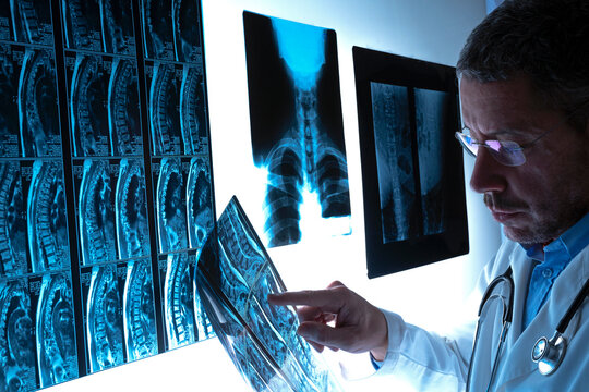 Radiologist doctor examining spinal column by radiography, x-ray and magnetic resonance imaging scan in hospital. Medical check-up and diagnosis. Health care concept.