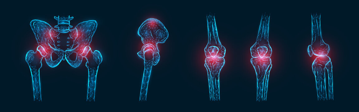 Polygonal vector illustration of pain or inflammation of the bones in the pelvis, hip joint, and knee joints isolated. Joint pain concept