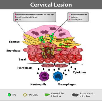 A precancerous cervical lesion. Abnormal cervical appearance. Squamous and glandular cells. Medical vector illustration