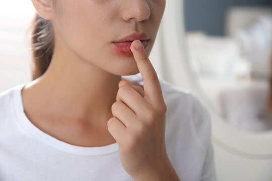 Woman with herpes applying cream on lips against blurred background, closeup