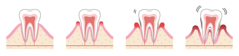 歯 歯周病
