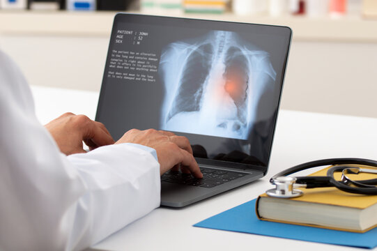 A pulmonologist working with laptop at office. Health care concept.