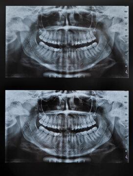 teeth xray of full face