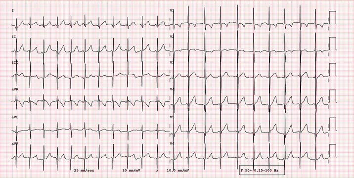 ECG example of a normal 12-lead sinus rhythm of pediatric patient