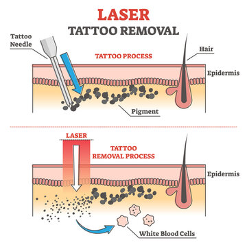 Laser tattoo removal process labeled educational explanation outline concept