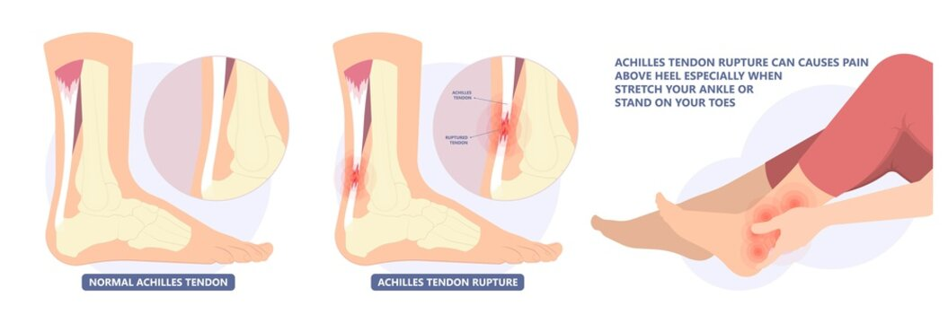 Achilles tendon rupture injury Feet calf test range of motion slight ache problem limb Thompson Simmonds