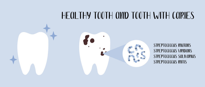 Healthy tooth and tooth with caries. Plaque bacteria: Streptococcus mutans, Streptococcus viridans. Oral care. Dental cavity, teeth hygiene. Vector flat cartoon illustration