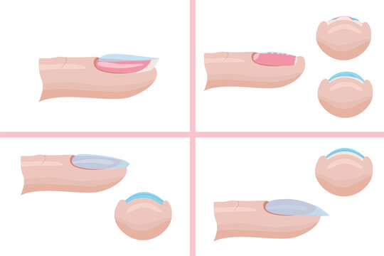 Hand nail care. The technique of applying the base layer of manicure, mistakes. Illustration for the manicure guide. Vector illustration