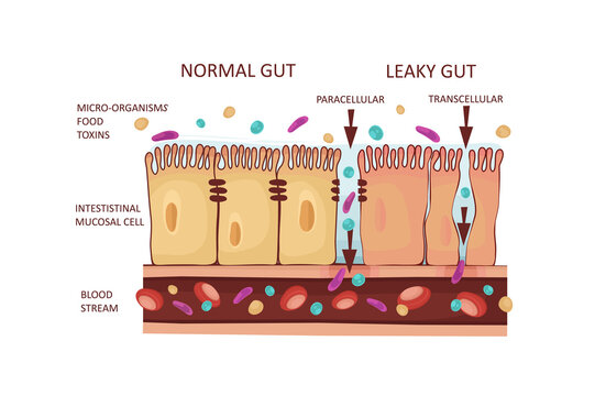 Leaky Gut Syndrome or Intestinal Permeability Diagram. Autoimmune disorder. Vector illustration