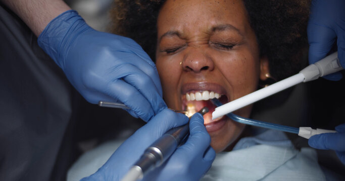Close up of dentist's hands and equipment working on stressed woman teeth