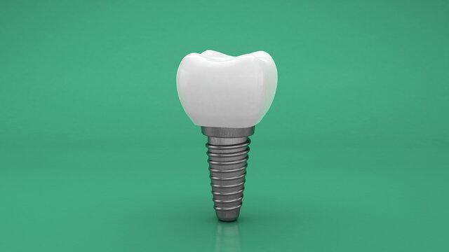 Dental implant. Denture. Green background. 3d render