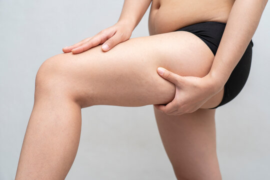 Asian woman is testing the skin for stretch marks and cellulite or showing her cellulite. ,Cellulite skin on her legs. Surgery or health care, beauty and female concept